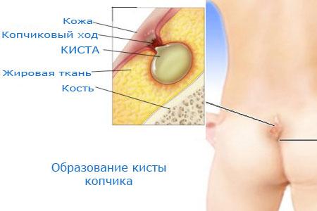 العصعص كيس الأعراض والصور وطرق العلاج والتشغيل
